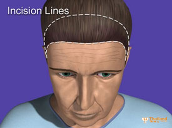 wrinkles_incision